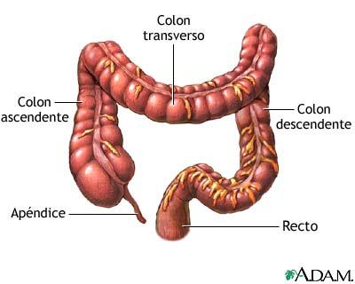 Cáncer de colon: una vida saludable ayuda a prevenirlo