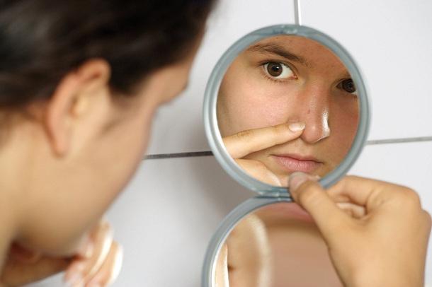 Hablamos sobre el acné