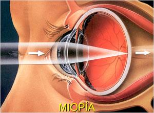 Dudas sobre la operación de miopía